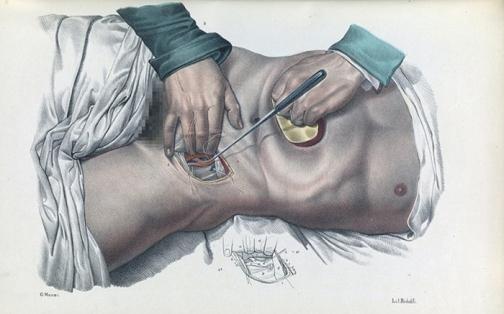 χειρουργ.